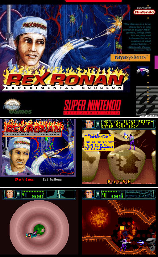 310-RexRonn