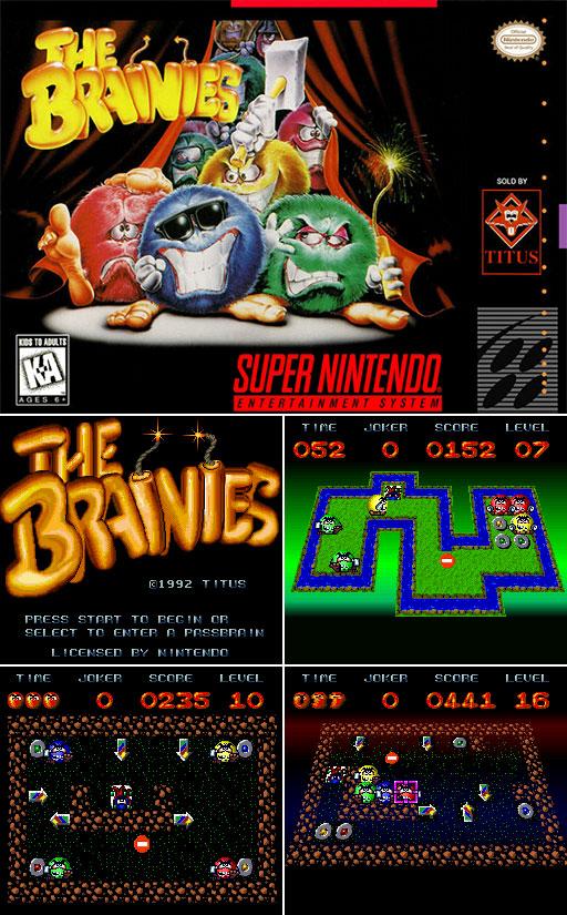 418-Brainies
